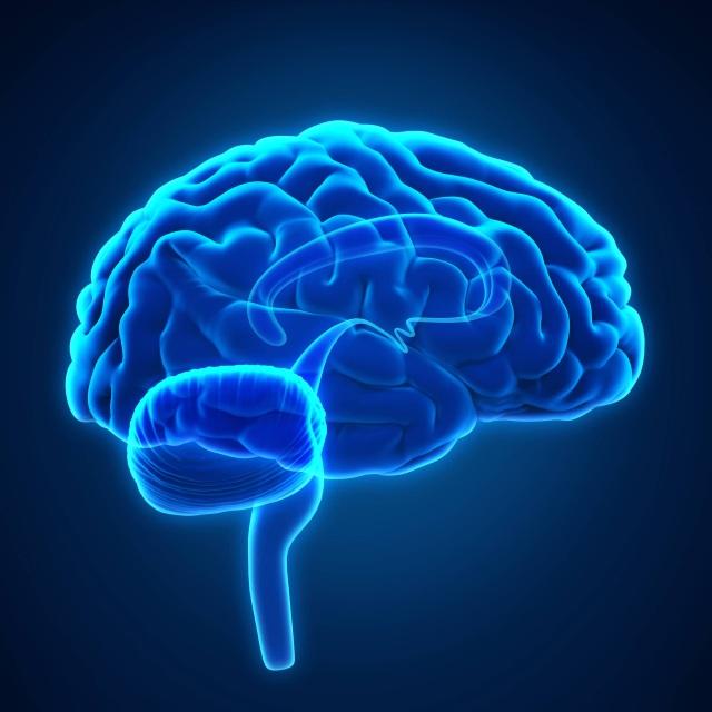 brain-xray_square